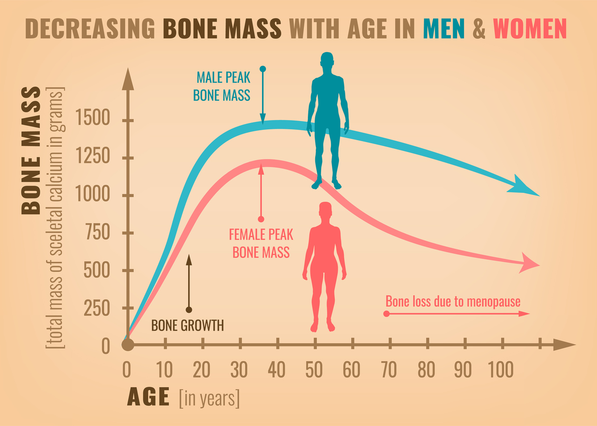 Risks of Decreasing Bone Mass