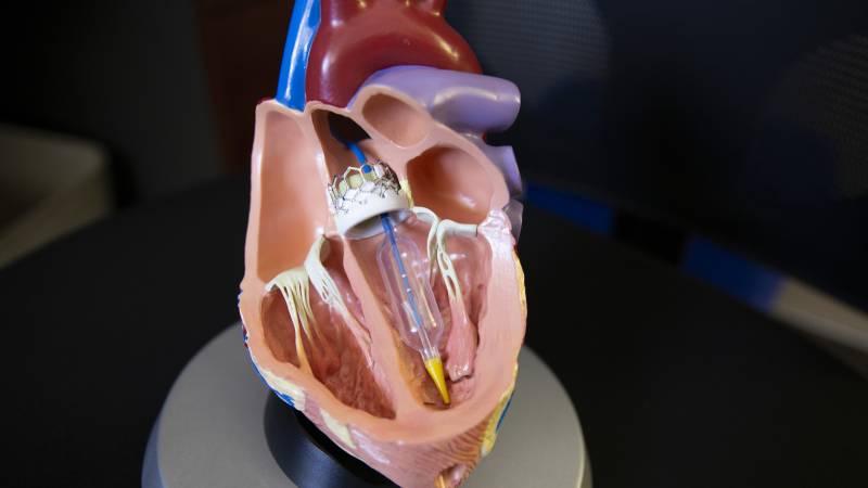 TAVR heart model