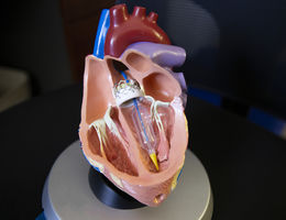 Graphic of heart model