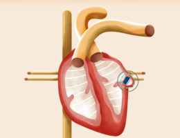 An animated depiction of the Watchman device on the heart. Photo courtesy of Boston Scientific.